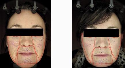 Minder poriên na enkele weken gebruik anti-aging egf complex met derma roller, oxygel en DayNight