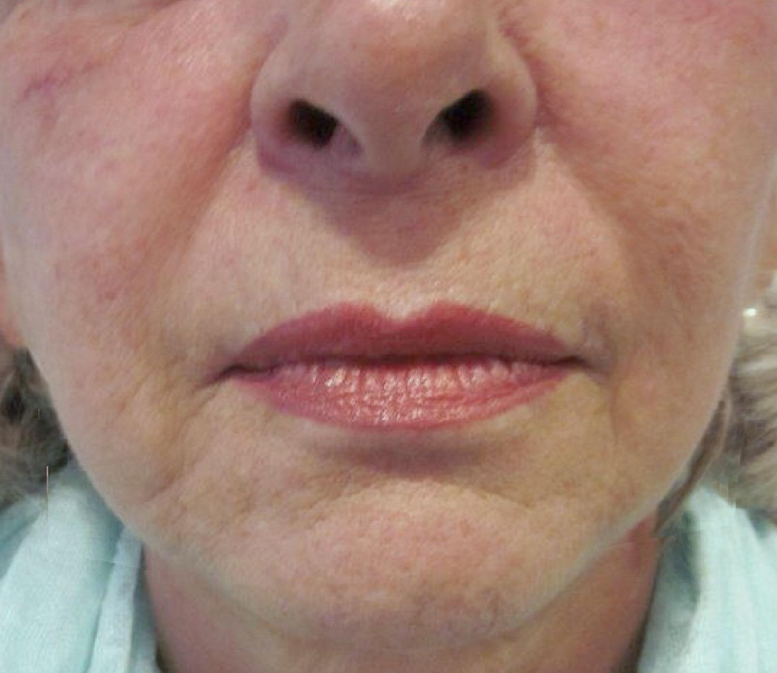 Na 6 weken anti-aging complex 45+ met derma roller