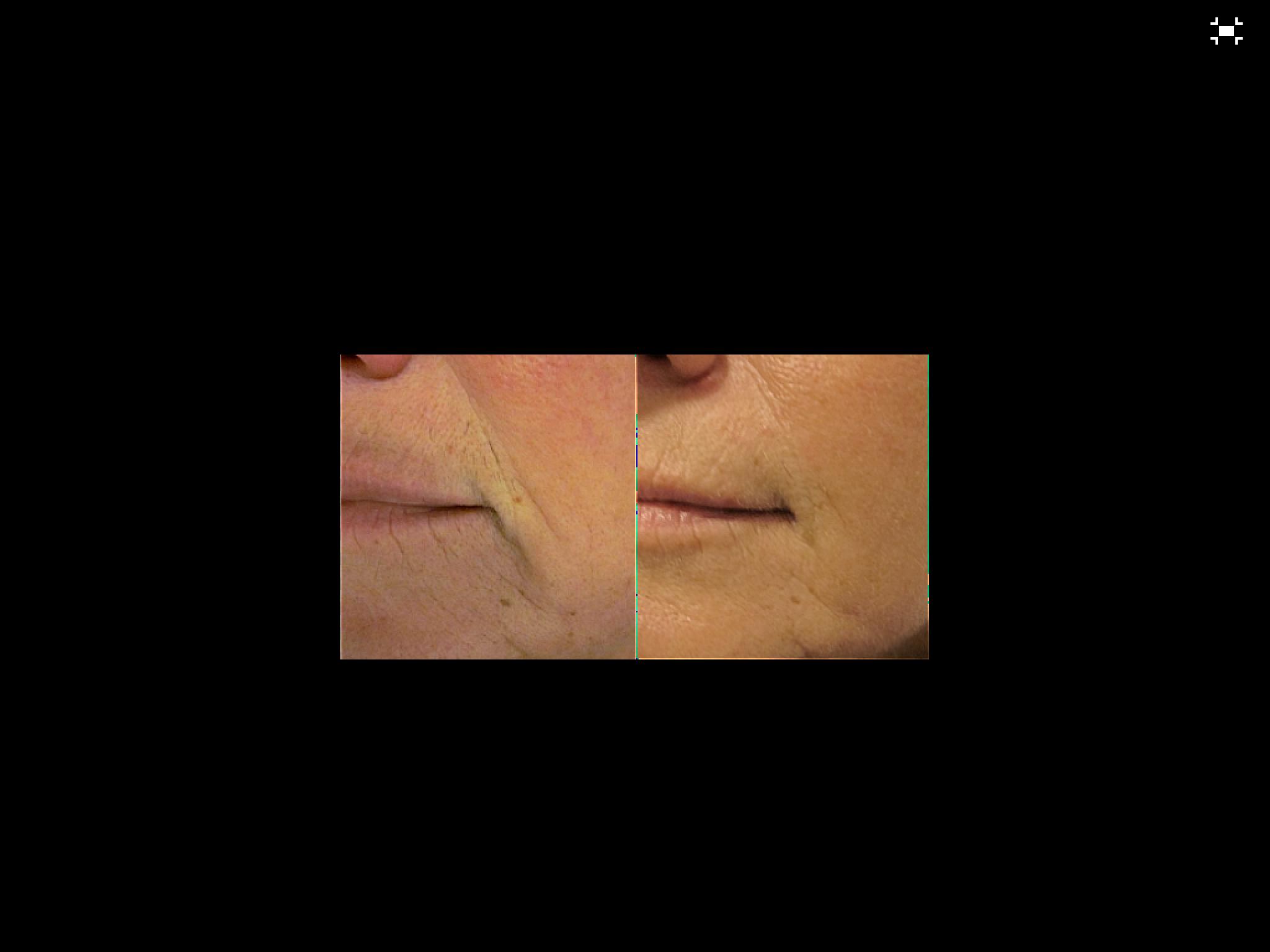 Voor en na enkele maanden anti-aging egf complex met derma roller, oxygel en DayNight