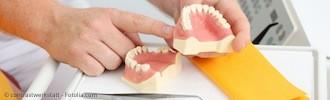 Welcher Zahnersatz ist der richtige für Sie? Lassen Sie sich beraten!