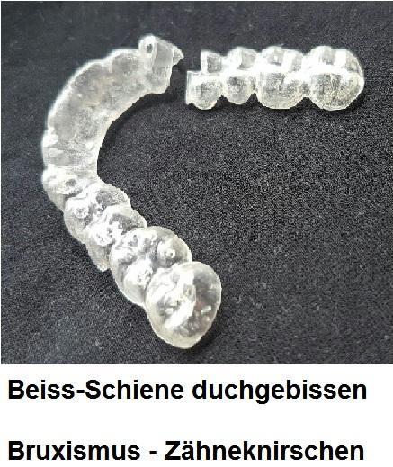 Schiene Zähneknirschen
