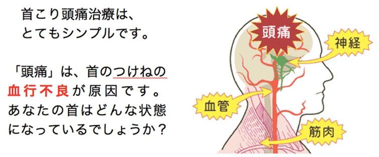 首の付け根の血行を良くするだけで、頭痛は消えます。首こり頭痛治療は、とてもシンプルです。頭痛は首のつけねの血行不良が原因です。あなたの首はどんな状態になっているでしょうか?