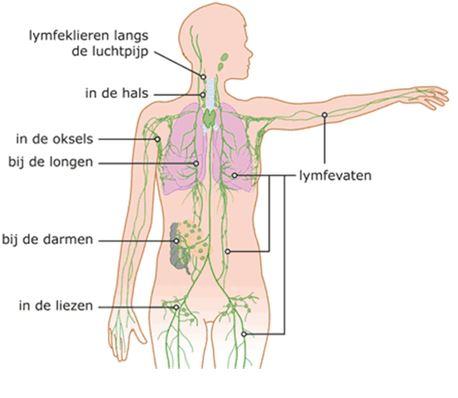 Lymfedrainage - Fysiotherapie Kleijkamp
