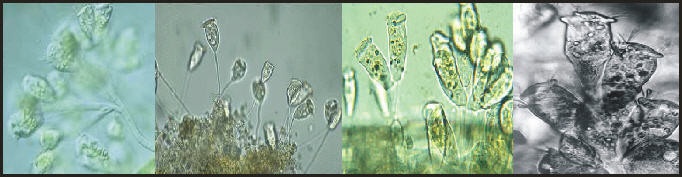Bron:  foto 1: protist.i.hosei.ac.jp, -2: biology.unm.edu, -3: geocities.ws, -4: peritrich.de.