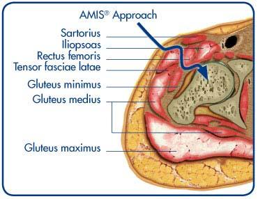AMIS, Medacta, Quadra, Minimax, Optimys, Allofit, Zimmer, Biomet, Arthrex