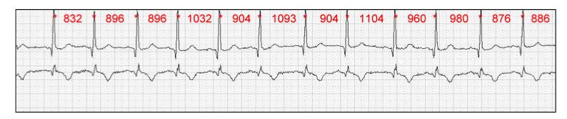 Variable Herzfrequenz, die RR Intervalle haben unterschiedliche Längen (Quelle: S2k-Leitlinie : Nutzung der Herzschlagfrequenz und der Herzfrequenzvariabilität in der Arbeitsmedizin und Arbeitswissenschaft)