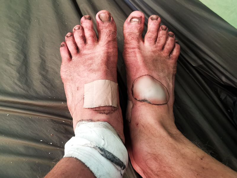 My feet after yesterday's hard day. They look worse than they feel.