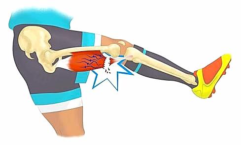 Ostéopathie et prévention des risques sportifs