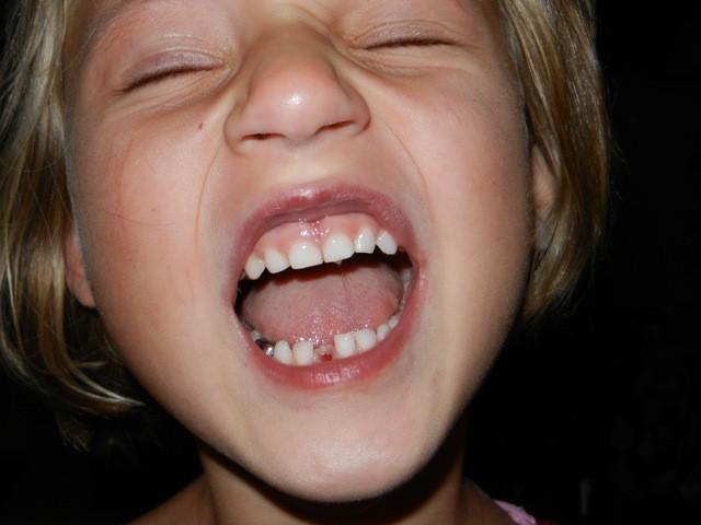 Hilfe mein Zahn ist weg!