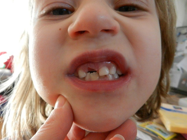 Die Zahnlücken werden immer auffäliger ;-)