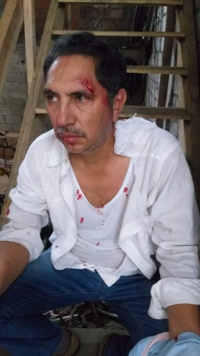 Mann wurde an der Demostrationen angegriffen