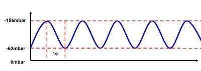 Beispielskurve für pulsierendes Schröpfen mit einem Gelenkschröpfkopf, Zeitintervall 2s (Unterdruckwelle). Die Druckänderung ist sinusförmig und daher gewebeschonend.