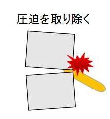 京都市中京区の整骨院、烏丸三条畠鍼灸院整骨院、カイロプラクティックの説明2