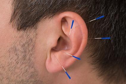 Ohr eines Mannes, versehen mit einigen Akupunkturnadeln