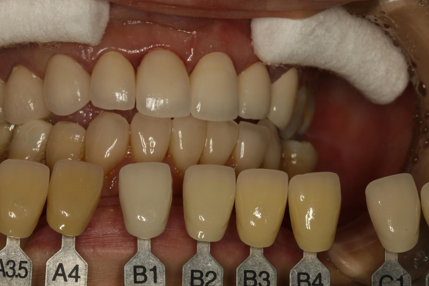 差し歯の色合いを確認します。色のサンプルから希望に近いものを選びます。