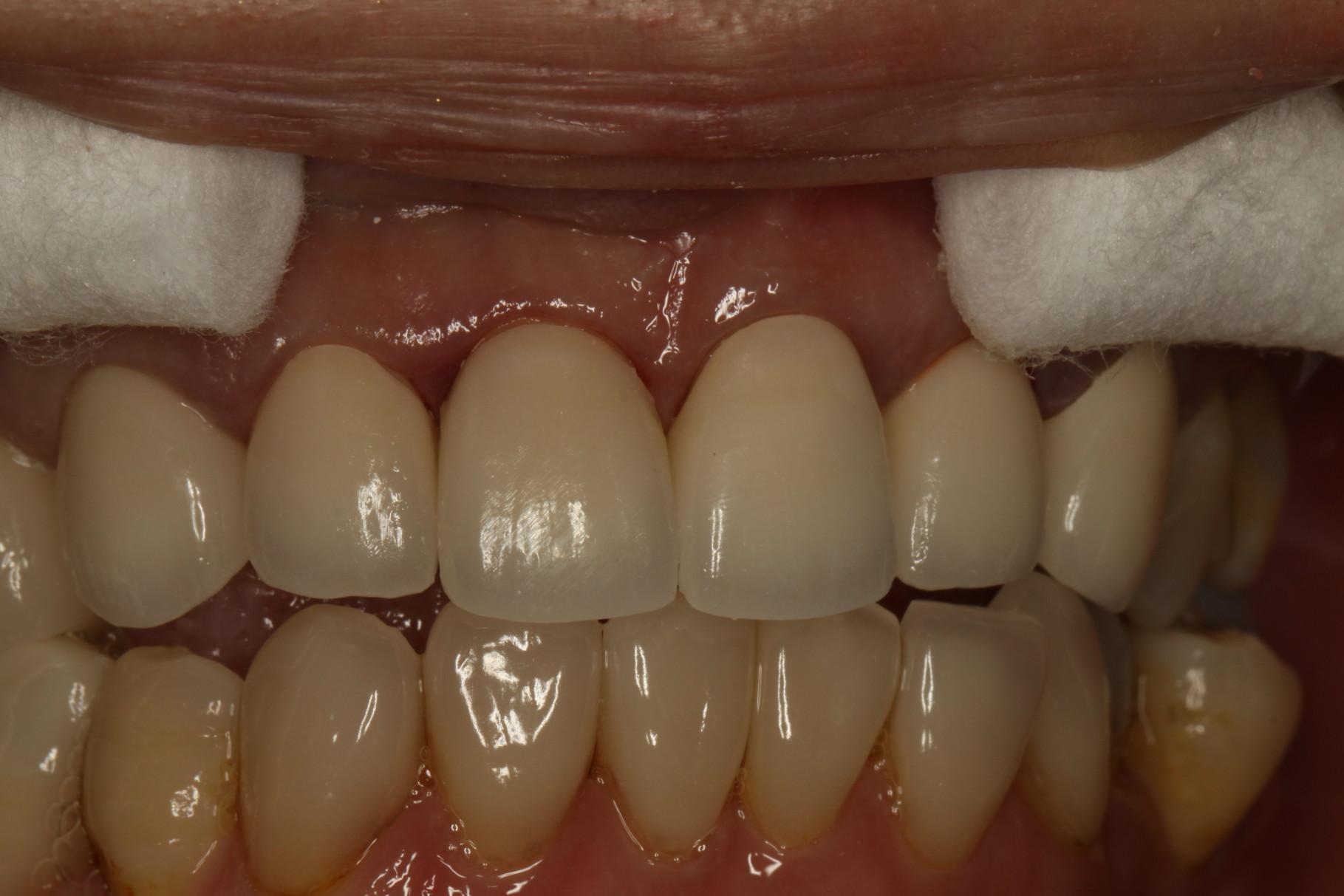 差し歯を口の中に入れて透明感のバランスを見ます。