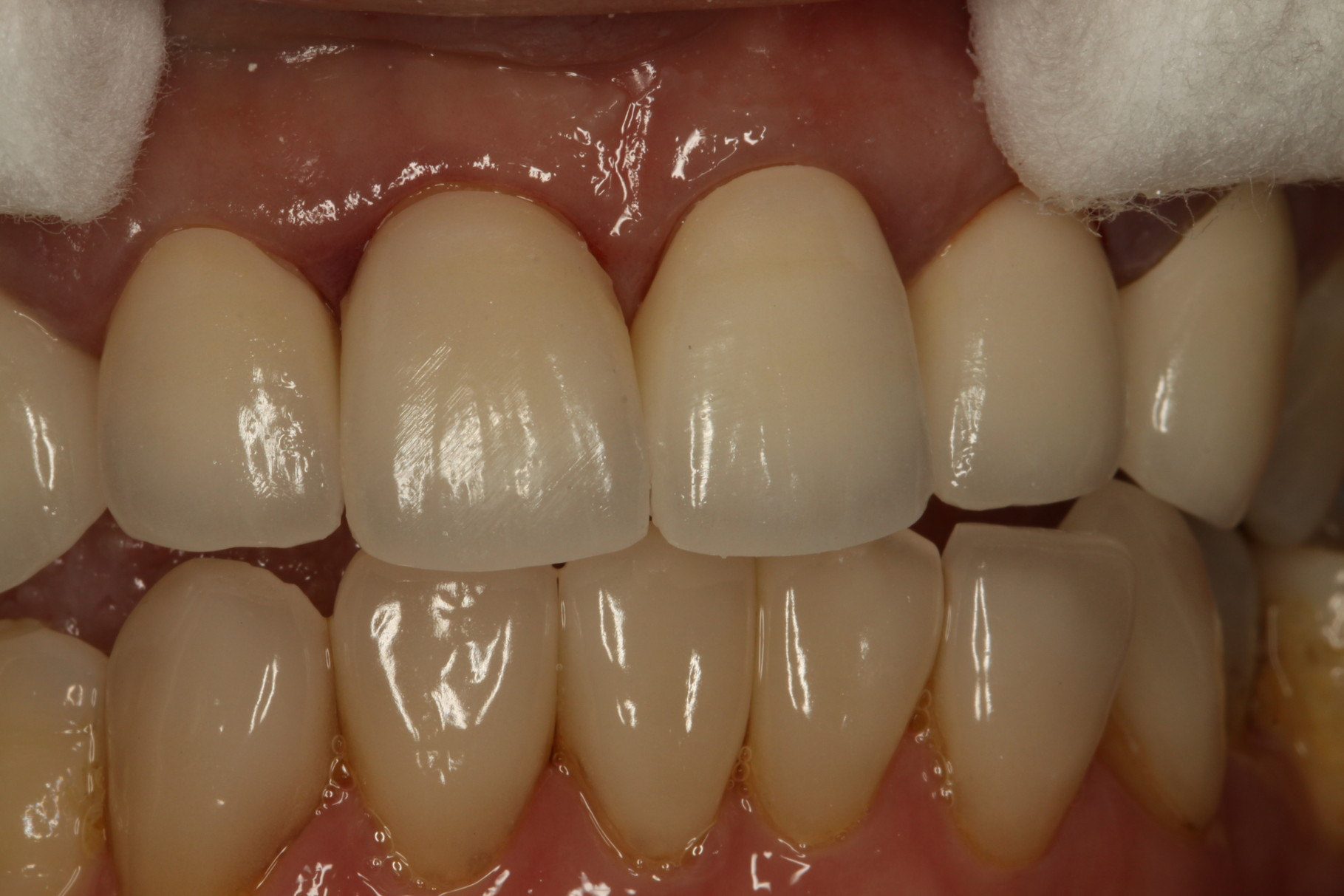 差し歯を完成させてお口の中に試適します。色の確認をします。