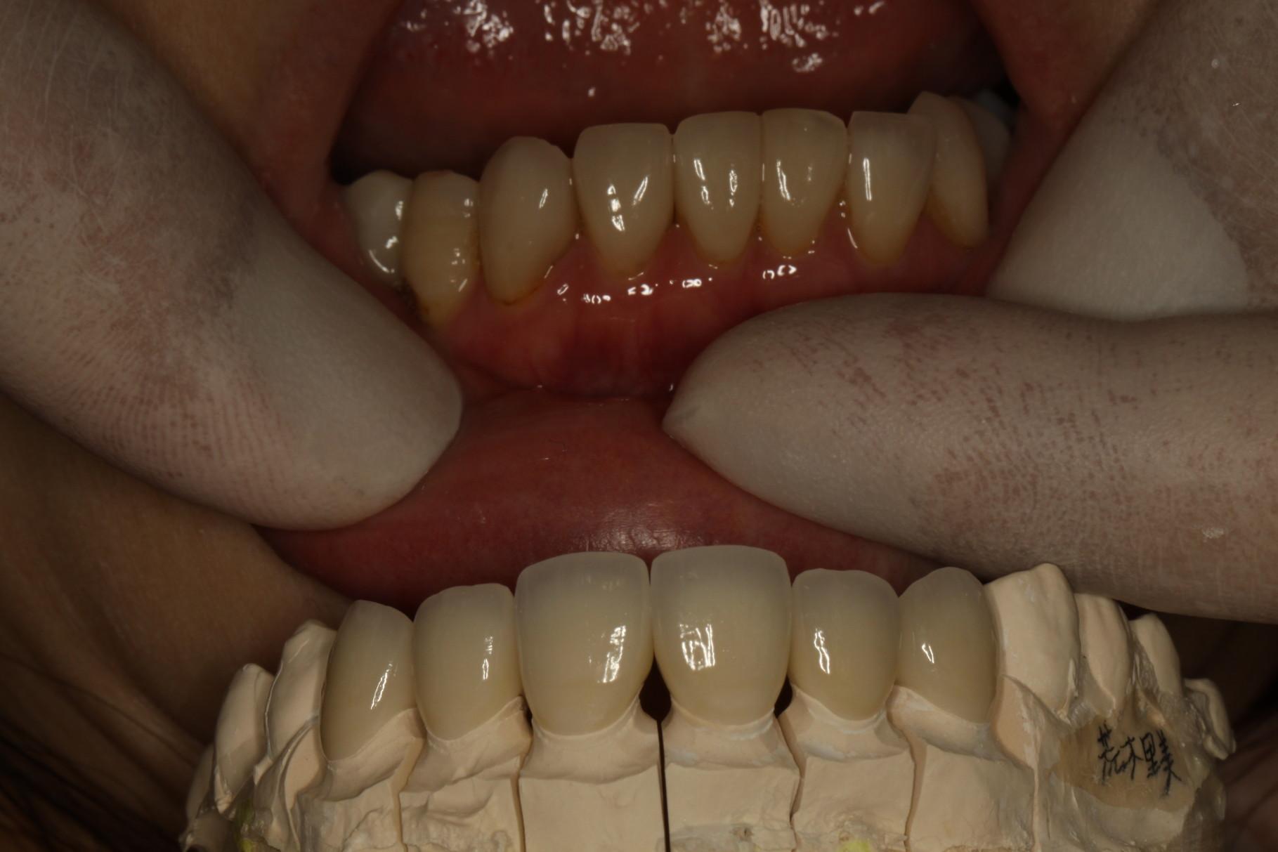 差し歯を模型上で確認します。