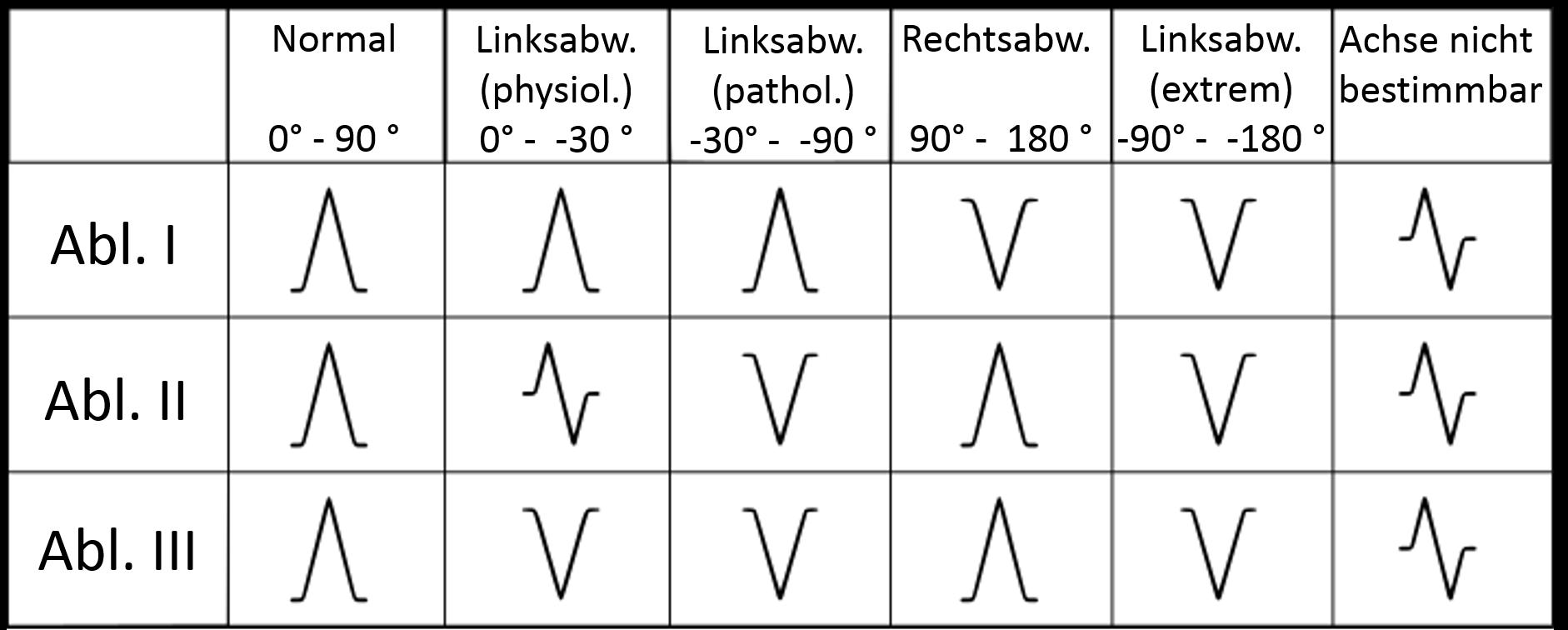 QRS-Achse und EKG-Lagetypen - Fokus-EKG