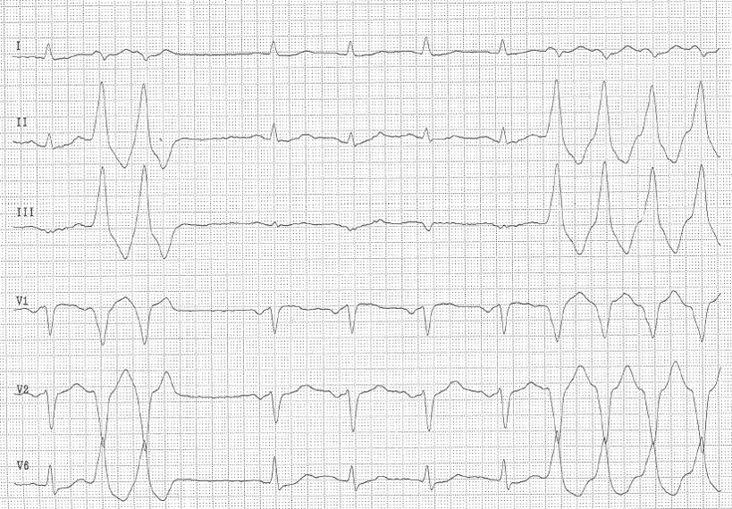 EKG Idiopathische Kammertachykardie RVOT