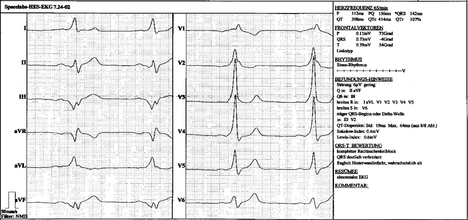 Av Reentry Tachykardie Und Ventrikuläre Präexzitation Wpw Syndrom