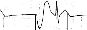 EKG Schrittmacher VVI Undersensing