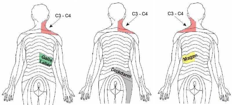 Diaphragma-Zervikalreflex\