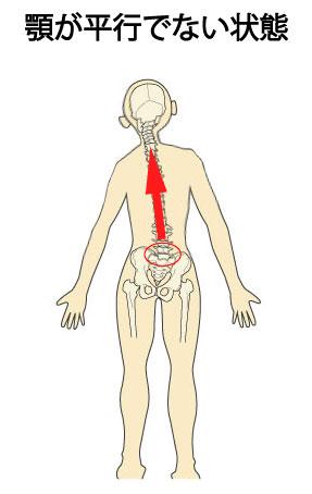 顎関節症と姿勢