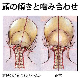 頭の傾きと第一頸椎