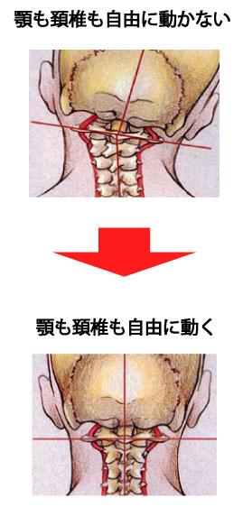 頸椎の制限