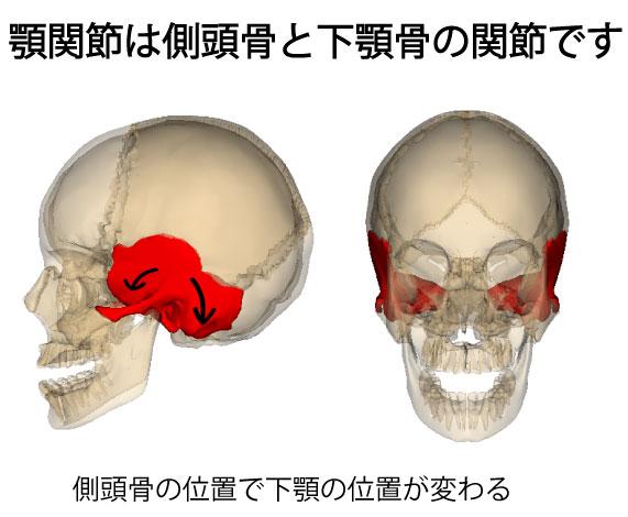 側頭骨のズレ