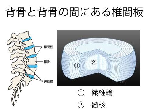 椎間板ヘルニアと顎関節症