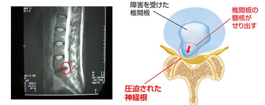 腰椎椎間板ヘルニアの画像