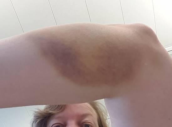 So sieht der Unterarm nach über einer Woche noch aus - aber gemäss Karin schmerzt er dafür nicht mehr :-)