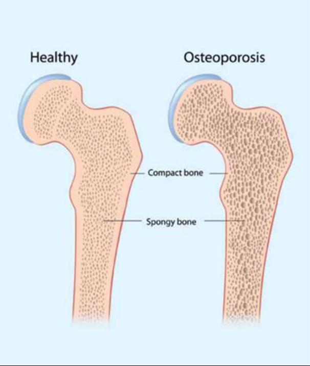 OSTEOPOROSE : prévenir / gérer. Je vous offre mon expertise