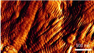 Cutimed Epiona mikroskopische Ansicht