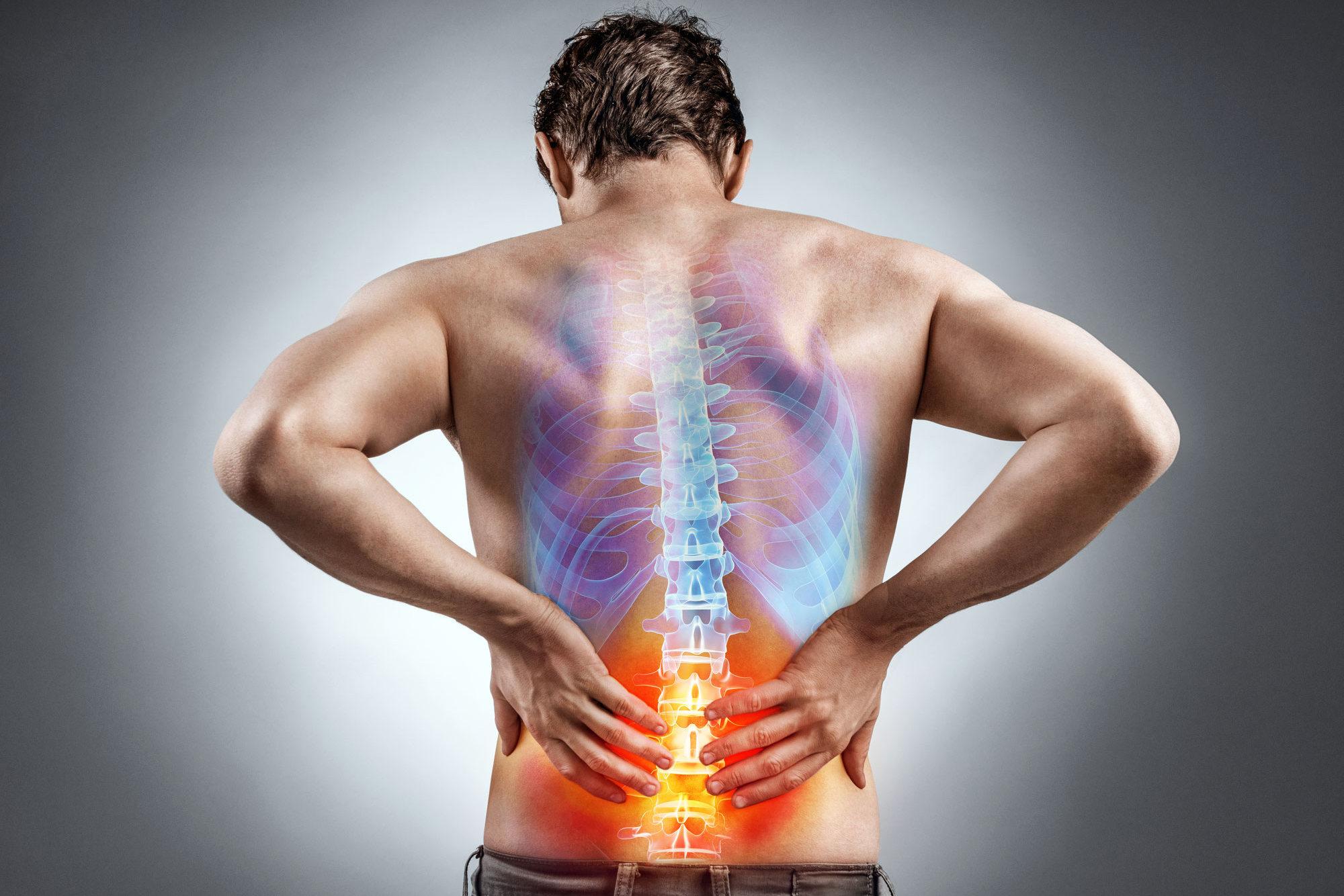 Rückenschmerzen!