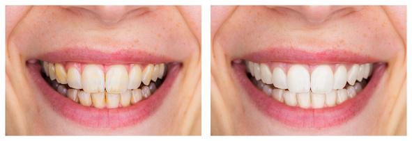 Nach dem Gebrauch der Munddusche, Vorher und Nachher