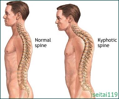 胸椎の後湾が強い状態