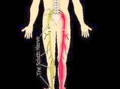 札幌-腰椎椎間板ヘルニヤによる坐骨神経痛