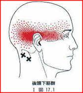 大後頭下筋トリガーポイントによる後頭骨の頭痛,目の疲れ,自律神経失調症
