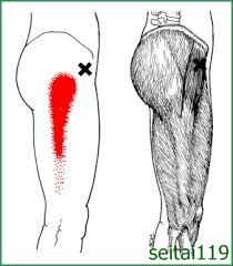 股関節治療おすすめ