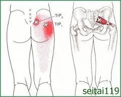 札幌市で慢性腰痛治療の おすすめ,ヘルニア,ぎっくり腰,坐骨神経痛