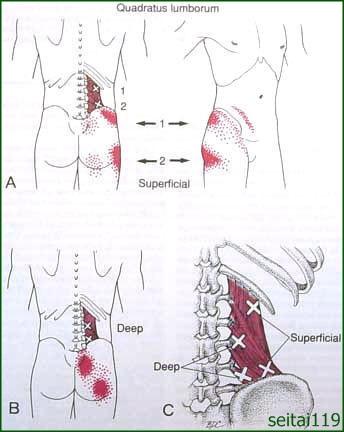 股関節の痛み症状にトリガーポイント療法
