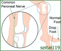 腓骨神経麻痺の 症状と原因