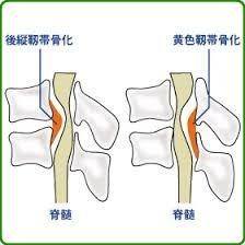 札幌-前縦靭帯骨化症や黄色靭帯骨化症の骨化