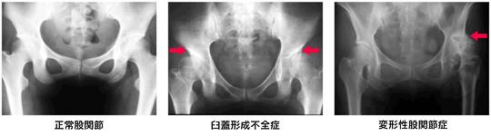 札幌市-大腿骨頭の形成不全