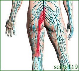 坐骨神経痛による下肢の痛み