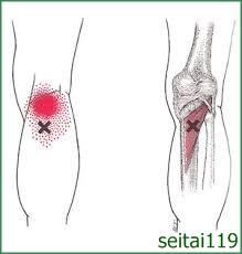 札幌市でトリガーポイント慢性膝痛治療おすすめ,変形性