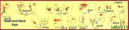 トリガーポイントによる頭部、首の痛み